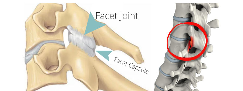 Facet Joint and Facet Capsule